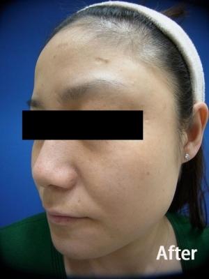 フェミークリニックのシミ治療(シミ取り)・肝斑・毛穴治療の症例写真[アフター]