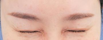 湘南美容クリニック 武蔵小杉院の顔のしわ・たるみの整形の症例写真[アフター]