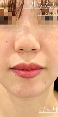 切らない鼻先縮小術の症例写真[ビフォー]