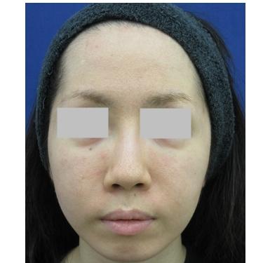理想の鼻の形を整える 《鼻尖縮小・小鼻縮小・耳介軟骨移植》の症例写真[ビフォー]