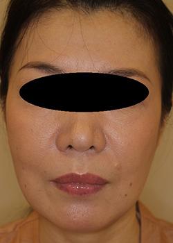 ヒアルロン酸・ボトックス注入による小顔治療の症例写真[アフター]
