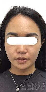 東京ゼロクリニック銀座の顔のしわ・たるみの整形(リフトアップ手術)の症例写真[ビフォー]
