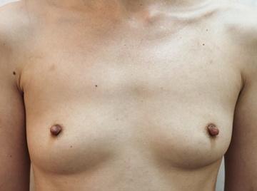 タウン形成外科クリニックの豊胸手術(胸の整形)の症例写真[アフター]