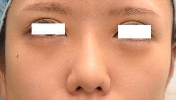 心斎橋コムロ美容外科クリニックの鼻の整形の症例写真[ビフォー]