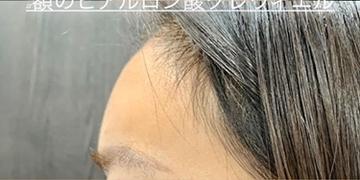 ルラ美容クリニックの顔の整形(輪郭・顎の整形)の症例写真[アフター]