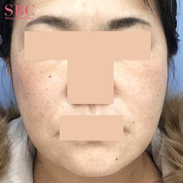 湘南美容クリニック 高松院の顔のしわ・たるみの整形(リフトアップ手術)の症例写真[アフター]