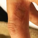 タトゥー除去(切除縫縮法・皮膚移植)[アフター]