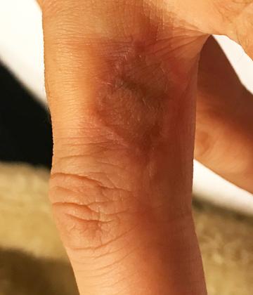 ローズマリークリニックのタトゥー除去(刺青・入れ墨を消す治療)の症例写真[アフター]