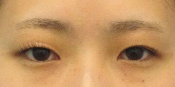 湘南美容クリニック高崎院の目・二重の整形の症例写真[ビフォー]