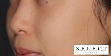 ピコレーザーによるシミ治療の症例写真[アフター]