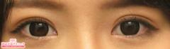 湘南美容クリニック熊本院の目・二重の整形の症例写真[アフター]