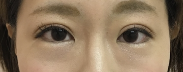 N クリニックの目・二重の整形の症例写真[アフター]