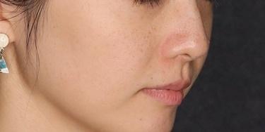 ピコシュアによるシミ治療の症例写真[アフター]