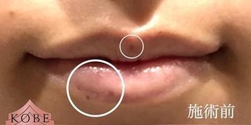 KOBE CLINIC 美容皮膚科・美容クリニックのほくろ除去・あざ治療・イボ治療の症例写真[ビフォー]