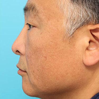 隆鼻術ほかの症例写真[アフター]