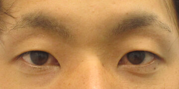 湘南美容クリニック 高崎院の目・二重整形の症例写真[ビフォー]
