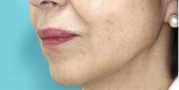 大塚美容形成外科 東京大塚院の顔のしわ・たるみの整形の症例写真[アフター]