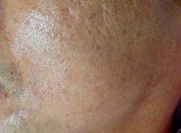 エストクリニックのシミ治療(シミ取り)・肝斑・毛穴治療の症例写真[アフター]
