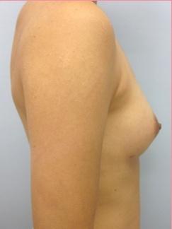 ■ピュアグラフト脂肪注入法の症例写真[アフター]