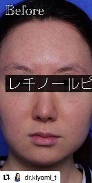 THE ONE.のニキビ・ニキビ跡の治療の症例写真[ビフォー]
