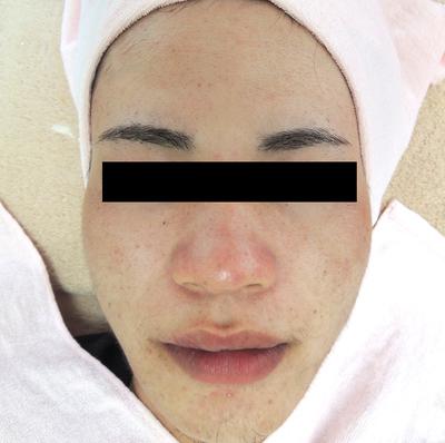 ニキビ治療:エンジェルピール、ジェネシスの症例写真[アフター]