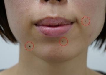 静岡美容外科橋本クリニックのホクロ除去・あざ治療・イボ治療の症例写真[ビフォー]