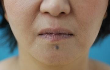 みずほクリニックのシワ・たるみ(照射系リフトアップ治療)の症例写真[アフター]