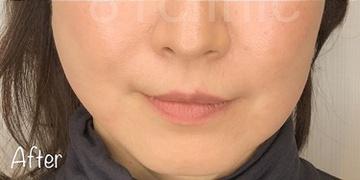 81clinicの顔のしわ・たるみの整形(リフトアップ手術)の症例写真[アフター]