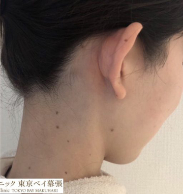 肌と歯のクリニック 東京ベイ幕張の医療レーザー脱毛の症例写真[アフター]
