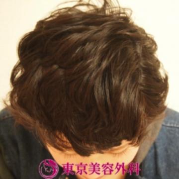 東京美容外科の薄毛治療・AGA・発毛の症例写真[アフター]