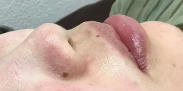 さっぽろ美容クリニック 本院のシミ取り・肝斑・毛穴治療の症例写真[アフター]