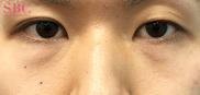 湘南美容クリニック岡山院の目元の整形、くま治療の症例写真[ビフォー]