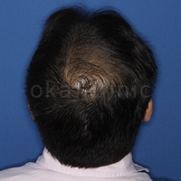 桜花クリニック HARG開発者のAGA・薄毛治療院の薄毛治療・AGA・発毛の症例写真[アフター]