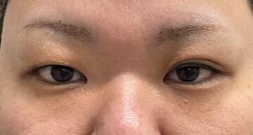 東京美容外科 沖縄院の目・二重整形の症例写真[ビフォー]