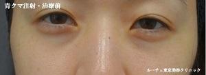 ルーチェ東京美容クリニック 池袋院の目元の整形、くま治療の症例写真[ビフォー]