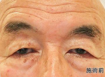 ローズマリークリニックの目・二重の整形の症例写真[ビフォー]