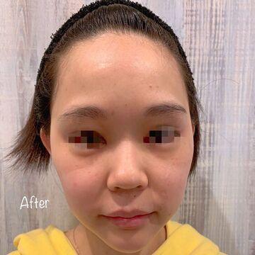 81clinicのシミ治療(シミ取り)・肝斑・毛穴治療の症例写真[アフター]