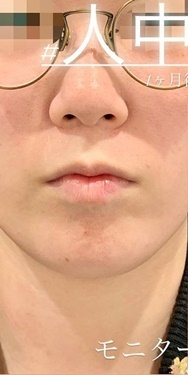 ルラ美容クリニックの鼻の整形の症例写真[ビフォー]