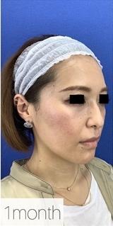 La Clinique Ginza(ラ クリニック銀座)のシワ・たるみ(照射系リフトアップ治療)の症例写真[アフター]