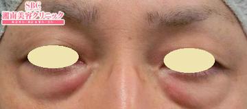 湘南美容クリニック 名古屋 栄院の目元の整形、くま治療の症例写真[ビフォー]