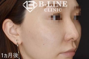 B-LINE CLINIC (ビーラインクリニック)のシミ治療(シミ取り)・肝斑・毛穴治療の症例写真[アフター]
