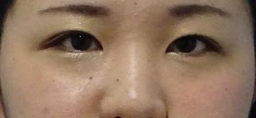 TCB東京中央美容外科の目・二重の整形の症例写真[アフター]