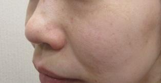 フォトシルク(80shot) 5回 シミ・ニキビ治療の症例写真[アフター]
