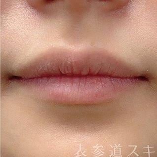 表参道スキンクリニックの口もと、唇の整形の症例写真[ビフォー]
