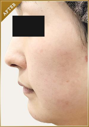銀座肌クリニックの症例写真[アフター]