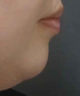 TCB東京中央美容外科の顔の整形(輪郭・顎の整形)の症例写真[ビフォー]