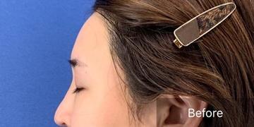 銀座長瀬クリニックの輪郭・顎の整形の症例写真[ビフォー]