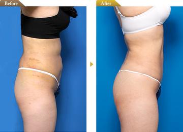 の脂肪吸引の症例写真