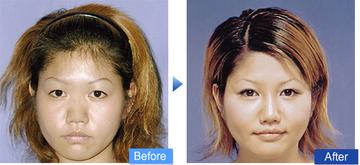 コムロクリニック(旧コムロ美容外科)の鼻の整形の症例写真