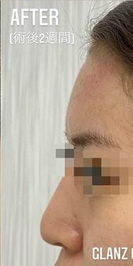 GLANZ CLINIC (グランツクリニック)の顔の整形(輪郭・顎の整形)の症例写真[アフター]